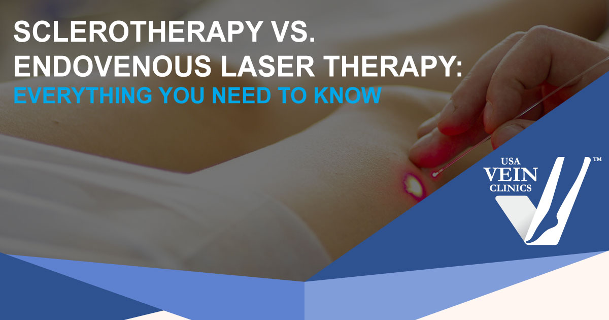 "Doctor examining someone's leg with words ""Sclerotherapy vs. Endovenous Laser Therapy"""