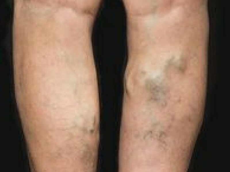 Close up of the back of someone's legs with visible varicose veins.
