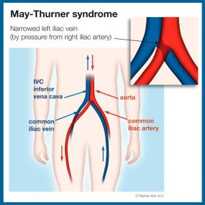 May Thurner Syndrome Diagram