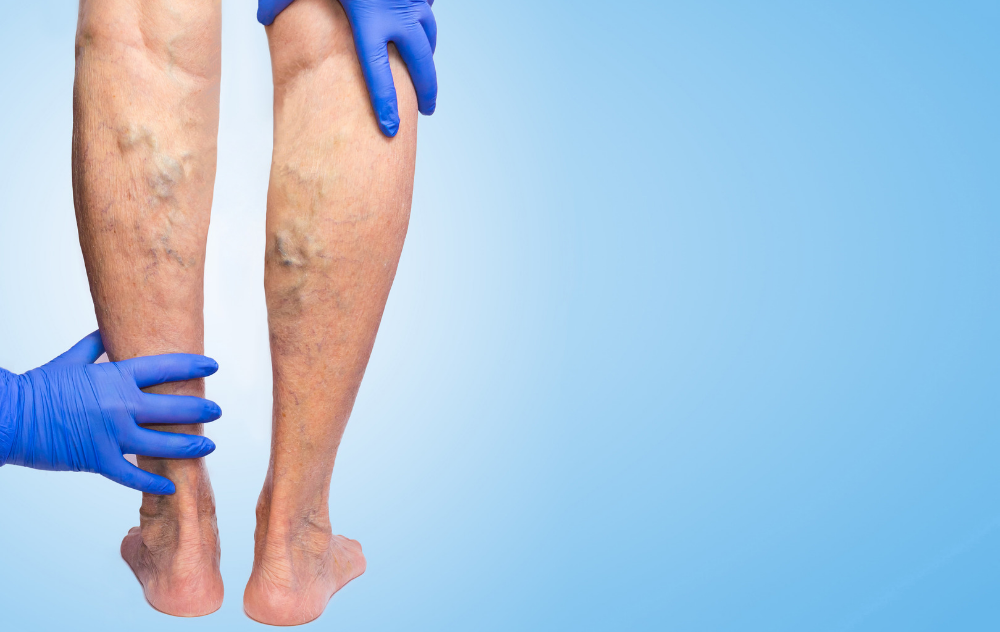 can varicose veins burst