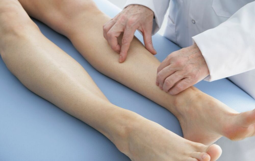 doctor examining leg for may-thurner syndrome caused by untreated venous insufficiency